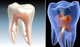 endodonția 3D
