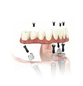 Uniklinic_implantologie-05