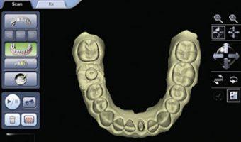 amprentarea dentară digitală